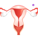 polycystic ovarian syndrome (PCOS) symptom