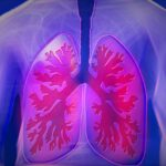 Save from Lung Cancer
